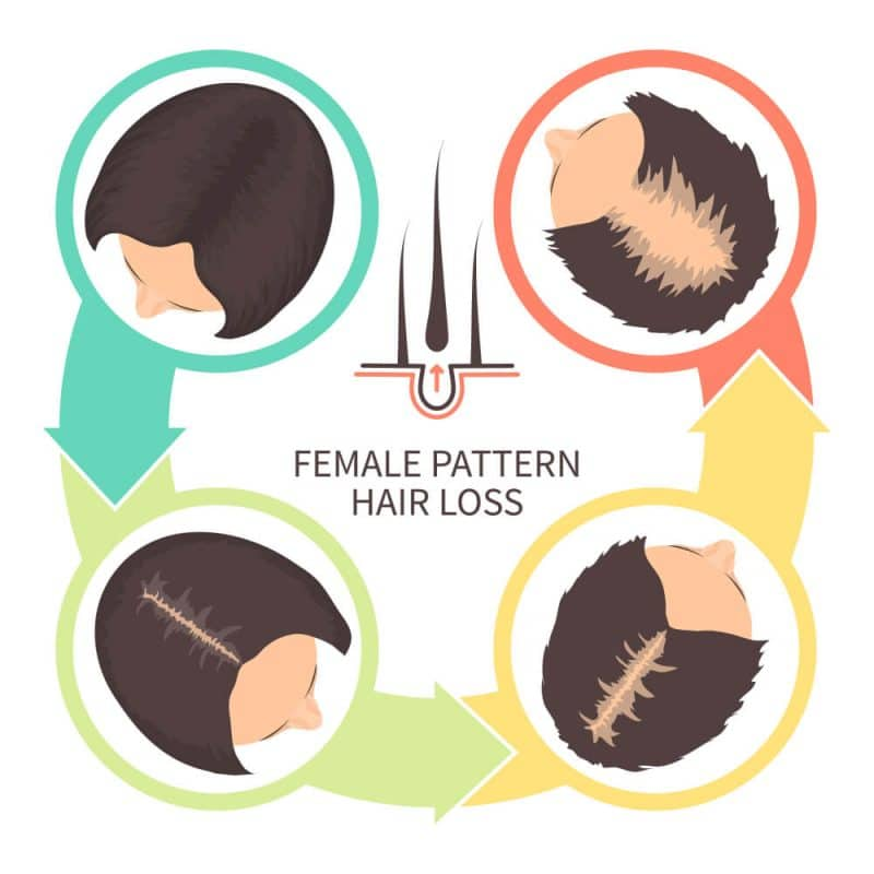 Female Pattern Hair Loss occur