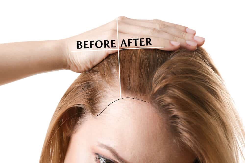 Finasteride for Women with Pattern Hair Loss