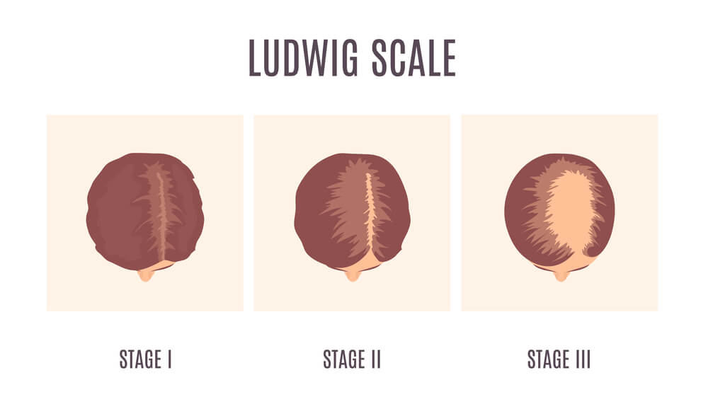 Ludwig classification